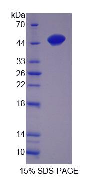 TTPA Protein - Recombinant Alpha-Tocopherol Transfer Protein By SDS-PAGE