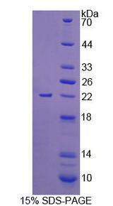 UMPS / OPRT Protein - Recombinant Uridine Monophosphate Synthetase By SDS-PAGE