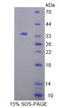 UP / UPP1 Protein - Recombinant Uridine Phosphorylase 1 By SDS-PAGE