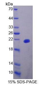 UXT Protein - Recombinant Ubiquitously Expressed Transcript By SDS-PAGE