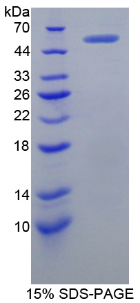 XRCC5 / Ku80 Protein - Recombinant  X-Ray Repair Cross Complementing 5 By SDS-PAGE