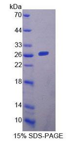 YAF2 Protein - Recombinant YY1 Associated Factor 2 By SDS-PAGE