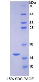 ZNT5 / SLC30A5 Protein - Recombinant Solute Carrier Family 30, Member 5 By SDS-PAGE