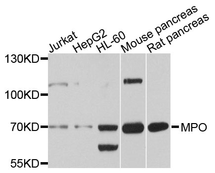 Western blot analysis of extracts of various cell lines, using MPO antibody at 1:1000 dilution. The secondary antibody used was an HRP Goat Anti-Rabbit IgG (H+L) at 1:10000 dilution. Lysates were loaded 25ug per lane and 3% nonfat dry milk in TBST was used for blocking. An ECL Kit was used for detection and the exposure time was 30s.