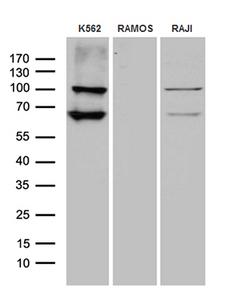 MPS1 / TTK Antibody - Western blot analysis of extracts. (35ug) from 3 different cell lines by using anti-TTK monoclonal antibody. (1:500)