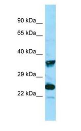 MRGPRX4 / MRGX4 antibody Western Blot of COLO205.  This image was taken for the unconjugated form of this product. Other forms have not been tested.