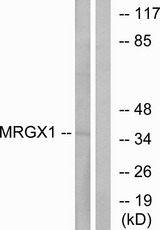 Western blot analysis of lysates from MCF-7 cells, using MRGX1 Antibody. The lane on the right is blocked with the synthesized peptide.