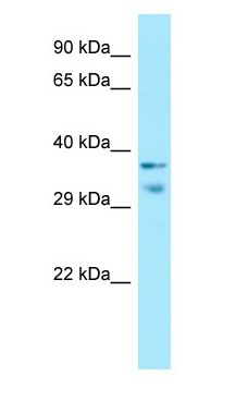 MRGX1 / MRGPRX1 antibody Western Blot of Fetal Small Intestine.  This image was taken for the unconjugated form of this product. Other forms have not been tested.