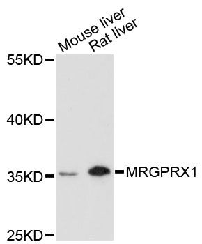 Western blot analysis of extracts of various cell lines, using MRGPRX1 antibody at 1:3000 dilution. The secondary antibody used was an HRP Goat Anti-Rabbit IgG (H+L) at 1:10000 dilution. Lysates were loaded 25ug per lane and 3% nonfat dry milk in TBST was used for blocking. An ECL Kit was used for detection and the exposure time was 90s.