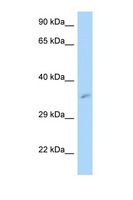 MRPL3 Antibody - MRPL3 antibody Western blot of ACHN Cell lysate. Antibody concentration 1 ug/ml.  This image was taken for the unconjugated form of this product. Other forms have not been tested.