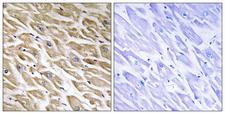 MRPL39 Antibody - Immunohistochemistry analysis of paraffin-embedded human heart tissue, using MRPL39 Antibody. The picture on the right is blocked with the synthesized peptide.