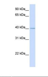 MRPL39 Antibody - Fetal heart lysate. Antibody concentration: 1.0 ug/ml. Gel concentration: 12%.  This image was taken for the unconjugated form of this product. Other forms have not been tested.
