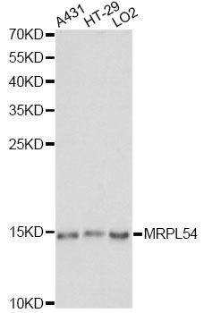 MRPL54 Antibody - Western blot analysis of extracts of various cell lines, using MRPL54 antibody at 1:1000 dilution. The secondary antibody used was an HRP Goat Anti-Rabbit IgG (H+L) at 1:10000 dilution. Lysates were loaded 25ug per lane and 3% nonfat dry milk in TBST was used for blocking. An ECL Kit was used for detection and the exposure time was 30s.