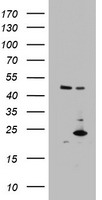 MRPS11 Antibody - HEK293T cells were transfected with the pCMV6-ENTRY control (Left lane) or pCMV6-ENTRY MRPS11 (Right lane) cDNA for 48 hrs and lysed. Equivalent amounts of cell lysates (5 ug per lane) were separated by SDS-PAGE and immunoblotted with anti-MRPS11.