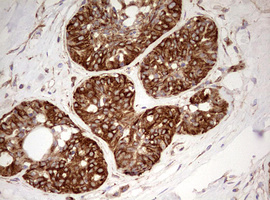 MRPS11 Antibody - IHC of paraffin-embedded Human breast tissue using anti-MRPS11 mouse monoclonal antibody. (Heat-induced epitope retrieval by 10mM citric buffer, pH6.0, 120°C for 3min).