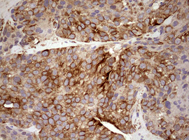 MRPS11 Antibody - IHC of paraffin-embedded Adenocarcinoma of Human breast tissue using anti-MRPS11 mouse monoclonal antibody. (Heat-induced epitope retrieval by 10mM citric buffer, pH6.0, 120°C for 3min).