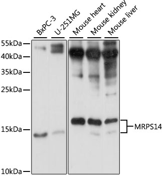 MRPS14 Antibody - Western blot analysis of extracts of various cell lines, using MRPS14 antibody at 1:1000 dilution. The secondary antibody used was an HRP Goat Anti-Rabbit IgG (H+L) at 1:10000 dilution. Lysates were loaded 25ug per lane and 3% nonfat dry milk in TBST was used for blocking. An ECL Kit was used for detection and the exposure time was 10s.