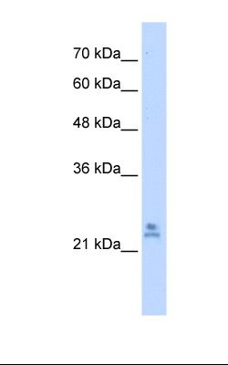 721_B cell lysate. Antibody concentration: 2.5 ug/ml. Gel concentration: 12%.  This image was taken for the unconjugated form of this product. Other forms have not been tested.