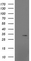 MRPS2 Antibody - HEK293T cells were transfected with the pCMV6-ENTRY control (Left lane) or pCMV6-ENTRY MRPS2 (Right lane) cDNA for 48 hrs and lysed. Equivalent amounts of cell lysates (5 ug per lane) were separated by SDS-PAGE and immunoblotted with anti-MRPS2.
