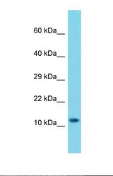 Western blot of Human A549. MRPS25 antibody dilution 1.0 ug/ml.  This image was taken for the unconjugated form of this product. Other forms have not been tested.