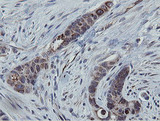 IHC of paraffin-embedded Adenocarcinoma of Human colon tissue using anti-MRPS27 mouse monoclonal antibody.