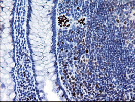IHC of paraffin-embedded Human colon tissue using anti-MRPS27 mouse monoclonal antibody.