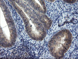 IHC of paraffin-embedded Adenocarcinoma of Human endometrium tissue using anti-MRPS27 mouse monoclonal antibody.