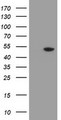 HEK293T cells were transfected with the pCMV6-ENTRY control (Left lane) or pCMV6-ENTRY MRPS27 (Right lane) cDNA for 48 hrs and lysed. Equivalent amounts of cell lysates (5 ug per lane) were separated by SDS-PAGE and immunoblotted with anti-MRPS27.