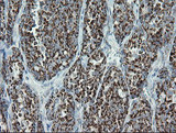 IHC of paraffin-embedded Carcinoma of Human thyroid tissue using anti-MRPS27 mouse monoclonal antibody.