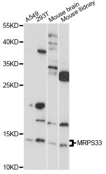 MRPS33 Antibody - Western blot analysis of extracts of various cell lines, using MRPS33 antibody at 1:1000 dilution. The secondary antibody used was an HRP Goat Anti-Rabbit IgG (H+L) at 1:10000 dilution. Lysates were loaded 25ug per lane and 3% nonfat dry milk in TBST was used for blocking. An ECL Kit was used for detection and the exposure time was 90s.