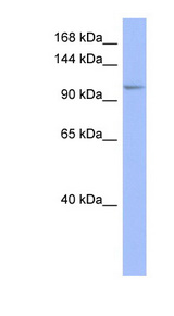 MSH4 antibody LS-C107500 Western blot of Fetal Thymus lysate.  This image was taken for the unconjugated form of this product. Other forms have not been tested.