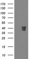 MSI1 / Musashi 1 Antibody - HEK293T cells were transfected with the pCMV6-ENTRY control (Left lane) or pCMV6-ENTRY MSI1 (Right lane) cDNA for 48 hrs and lysed. Equivalent amounts of cell lysates (5 ug per lane) were separated by SDS-PAGE and immunoblotted with anti-MSI1.