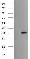 HEK293T cells were transfected with the pCMV6-ENTRY control (Left lane) or pCMV6-ENTRY MSI2 (Right lane) cDNA for 48 hrs and lysed. Equivalent amounts of cell lysates (5 ug per lane) were separated by SDS-PAGE and immunoblotted with anti-MSI2.