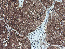 IHC of paraffin-embedded Adenocarcinoma of Human ovary tissue using anti-MSI2 mouse monoclonal antibody.