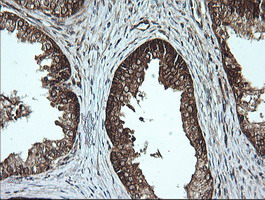 IHC of paraffin-embedded Human prostate tissue using anti-MSI2 mouse monoclonal antibody.