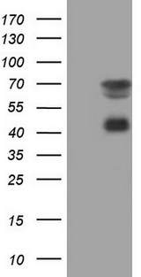 MSLN / Mesothelin Antibody - HEK293T cells were transfected with the pCMV6-ENTRY control. (Left lane) or pCMV6-ENTRY MSLN. (Right lane) cDNA for 48 hrs and lysed