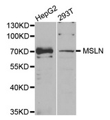 MSLN / Mesothelin Antibody - Western blot analysis of extracts of various cell lines.