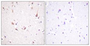 IHC of paraffin-embedded human brain tissue, using Mst1/2 (Ab-183) Antibody. The picture on the right is treated with the synthesized peptide.