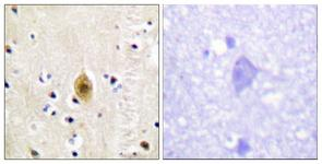 IHC of paraffin-embedded human brain, using Mst1/2 (Phospho-Thr183) Antibody. The sample on the right was incubated with synthetic peptide.