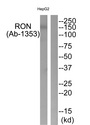 MST1R / RON Antibody - Western blot of extracts from HepG2 cells, using RON (Ab-1353) antibody.