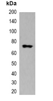 mStrawberry Tag Antibody - Western blot analysis of over-expressed mStrawberry-tagged protein in 293T cell lysate.