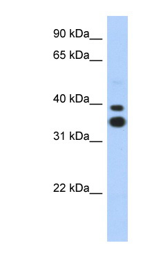 MSX2 antibody LS-C109584 Western blot of Transfected 293T cell lysate.  This image was taken for the unconjugated form of this product. Other forms have not been tested.