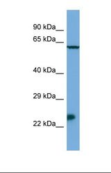Msx3 Antibody - Western blot of Mouse SP2/0. Msx3 antibody dilution 1.0 ug/ml.  This image was taken for the unconjugated form of this product. Other forms have not been tested.