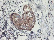 MTFMT Antibody - IHC of paraffin-embedded Adenocarcinoma of Human breast tissue using anti-MTFMT mouse monoclonal antibody. (Heat-induced epitope retrieval by 10mM citric buffer, pH6.0, 100C for 10min).