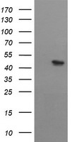 MTFMT Antibody - HEK293T cells were transfected with the pCMV6-ENTRY control (Left lane) or pCMV6-ENTRY MTFMT (Right lane) cDNA for 48 hrs and lysed. Equivalent amounts of cell lysates (5 ug per lane) were separated by SDS-PAGE and immunoblotted with anti-MTFMT.