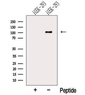 MTHFD1 Antibody - Western blot analysis of extracts of HEK293 cells using MTHFD1 antibody. The lane on the left was treated with blocking peptide.