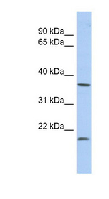 MTHFD2L Antibody - MTHFD2L antibody Western blot of Fetal Lung lysate. This image was taken for the unconjugated form of this product. Other forms have not been tested.