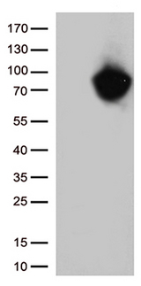 MTHFR Antibody - HEK293T cells were transfected with the pCMV6-ENTRY control. (Left lane) or pCMV6-ENTRY MTHFR. (Right lane) cDNA for 48 hrs and lysed. Equivalent amounts of cell lysates. (5 ug per lane) were separated by SDS-PAGE and immunoblotted with anti-MTHFR. (1:500)