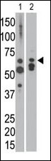 The anti-MTM1 C-term antibody is used in Western blot to detect MTM1 in NCI-H460 cell lysate (lane 1) and in mouse heart tissue lysate (lane 2).