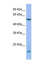MTM1 antibody Western blot of Mouse Thymus lysate. Antibody concentration 1 ug/ml.  This image was taken for the unconjugated form of this product. Other forms have not been tested.